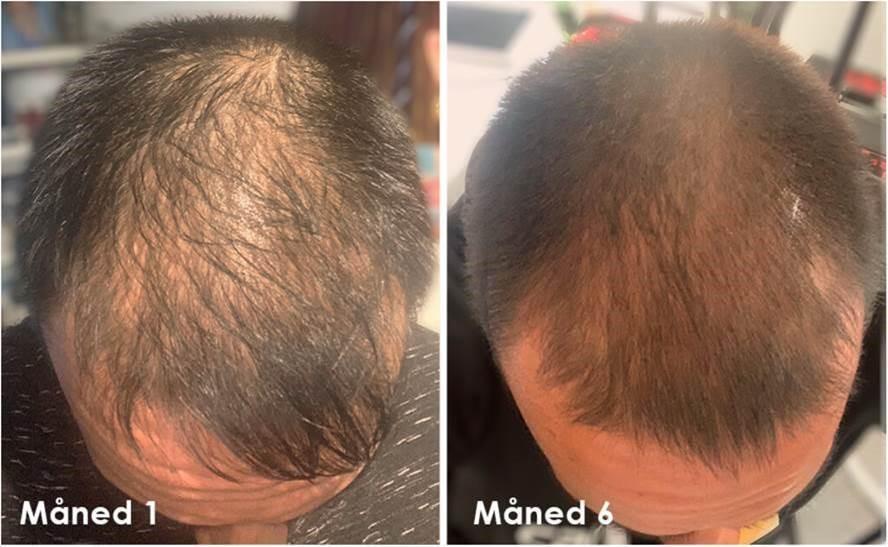 Resultat etter 6 måneders bruk